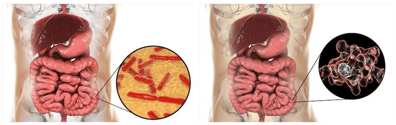 Quali fermenti per morbo di Crohn