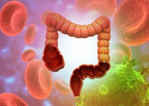 Morbo di Crohn terapia