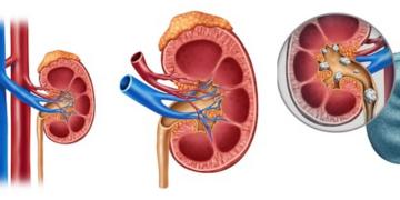 integratore ahcc per il cancro alla prostata