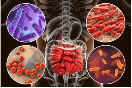 Nuovi probiotici contro la malattia di crohn