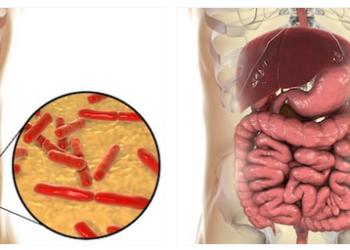 morbo di crohn probiotici
