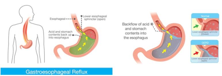 reflusso gastrico cura
